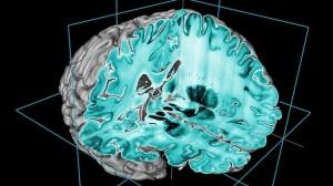 cerveau en 3 D